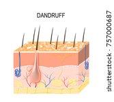 dandruff. seborrheic dermatitis ... | Shutterstock .eps vector #757000687