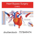 a plaque it is blocked artery... | Shutterstock .eps vector #757849474