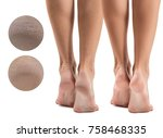 feet with dry skin before and... | Shutterstock . vector #758468335