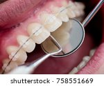 dentist checking up teeth with... | Shutterstock . vector #758551669