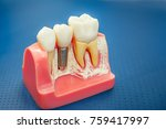 Close Up Human Tooth Implant ...