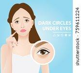 dark circles under eyes vector... | Shutterstock .eps vector #759611224
