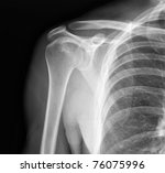 x ray of shoulder joint   many... | Shutterstock . vector #76075996
