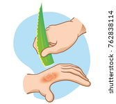 illustration first aid hands... | Shutterstock .eps vector #762838114
