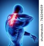 3d illustration  neck painful   ... | Shutterstock . vector #763244059