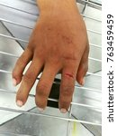 Small photo of laceration wound and index finger, emergency room