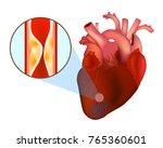 blocked arteries. heart attack. ... | Shutterstock .eps vector #765360601