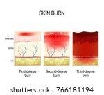 skin burn. three degrees of... | Shutterstock .eps vector #766181194