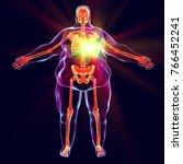 heart disease in obesity ...   Shutterstock . vector #766452241