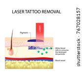 laser tattoo removal. dark ink... | Shutterstock .eps vector #767028157