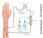 dialysis process illustration | Shutterstock .eps vector #767190277