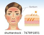 skin layer of woman which... | Shutterstock .eps vector #767891851