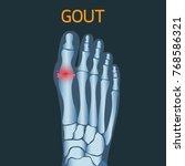 gout vector logo icon... | Shutterstock .eps vector #768586321