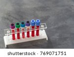 rack of blood test on white
