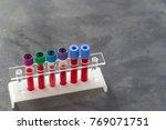 rack of blood test on white...   Shutterstock . vector #769071751