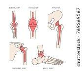implantation joint skeleton | Shutterstock .eps vector #769369567