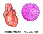 human heart and micrograph with ...   Shutterstock . vector #769633705