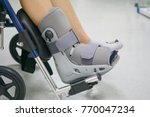 orthopaedic boot to a patient.... | Shutterstock . vector #770047234