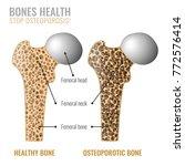 osteoporosis cross section... | Shutterstock .eps vector #772576414