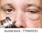 examination of the sick eye and ... | Shutterstock . vector #773465251