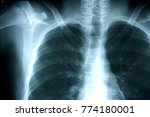 film chest x ray  show normal...   Shutterstock . vector #774180001