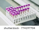 complete blood count  cbc  test ... | Shutterstock . vector #774197704