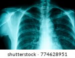 film chest x ray  show normal...   Shutterstock . vector #774628951