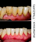 Small photo of Before and after dental tartar removal - professional oral hygiene.