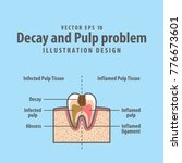 decay and pulp problem cross... | Shutterstock .eps vector #776673601