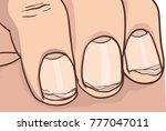 illustration of broken nail | Shutterstock .eps vector #777047011
