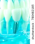Small photo of Dental titanium aesthetic orthodontic tooth implant in dentists mouth teeth model closeup isolated.