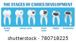 the stages of caries... | Shutterstock .eps vector #780718225