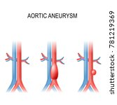 types of abdominal aortic... | Shutterstock .eps vector #781219369