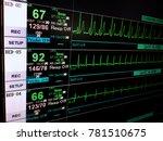 Stock photo vital sign ekg monitor 781510675