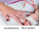 laser tattoo removal | Shutterstock . vector #781716301