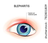 eye of human. blepharitis is a... | Shutterstock .eps vector #782801809
