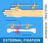External Fixation Fixator...