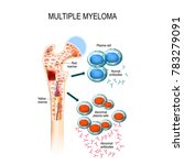 myeloma cells suppress the... | Shutterstock . vector #783279091