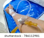 Small photo of Hospitals use a saline drip in an IV. Hospitals use an intravenous sodium chloride solution to supply water and salt to the body to alleviate dehydration