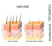 hair loss  baldness . normal... | Shutterstock .eps vector #787268914