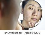skin problems and acne scar ... | Shutterstock . vector #788694277