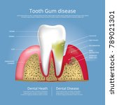 human teeth stages of gum... | Shutterstock .eps vector #789021301
