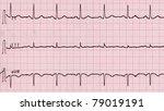 electrocardiography  aka ekg... | Shutterstock . vector #79019191