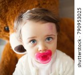 Small photo of Toddler with big bruise on his forehead after bumping. Children often accidentally bump their heads.