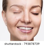 compare of old photo with acne... | Shutterstock . vector #793878739