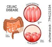 celiac disease. small... | Shutterstock .eps vector #794121334