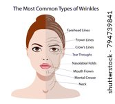 common types of facial wrinkles.... | Shutterstock .eps vector #794739841
