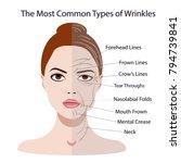 common types of facial wrinkles.... | Shutterstock .eps vector #794739841