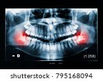 adult woman panoramic dental x... | Shutterstock . vector #795168094