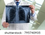 a doctor checking chest x ray | Shutterstock . vector #795740935